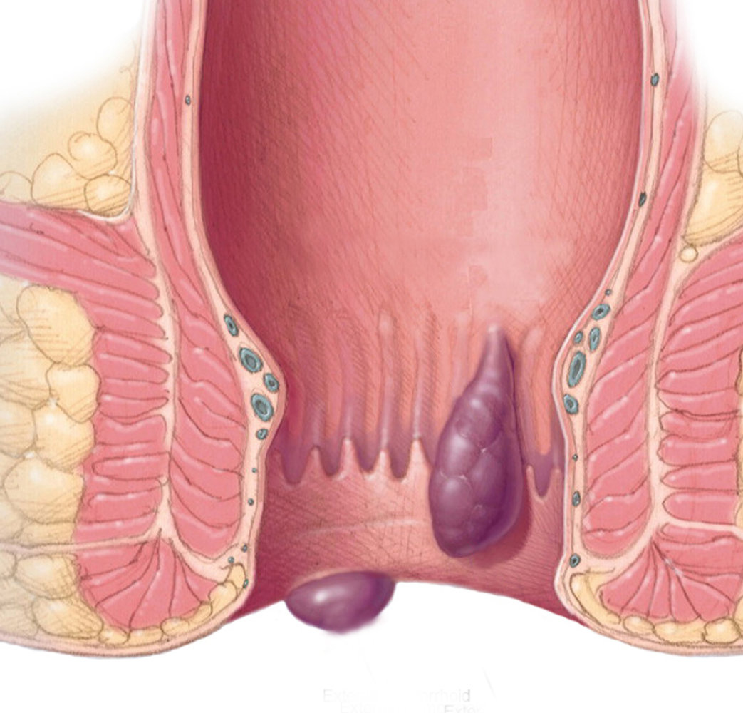 Ayurvedic treatment and medicine for piles in calicut